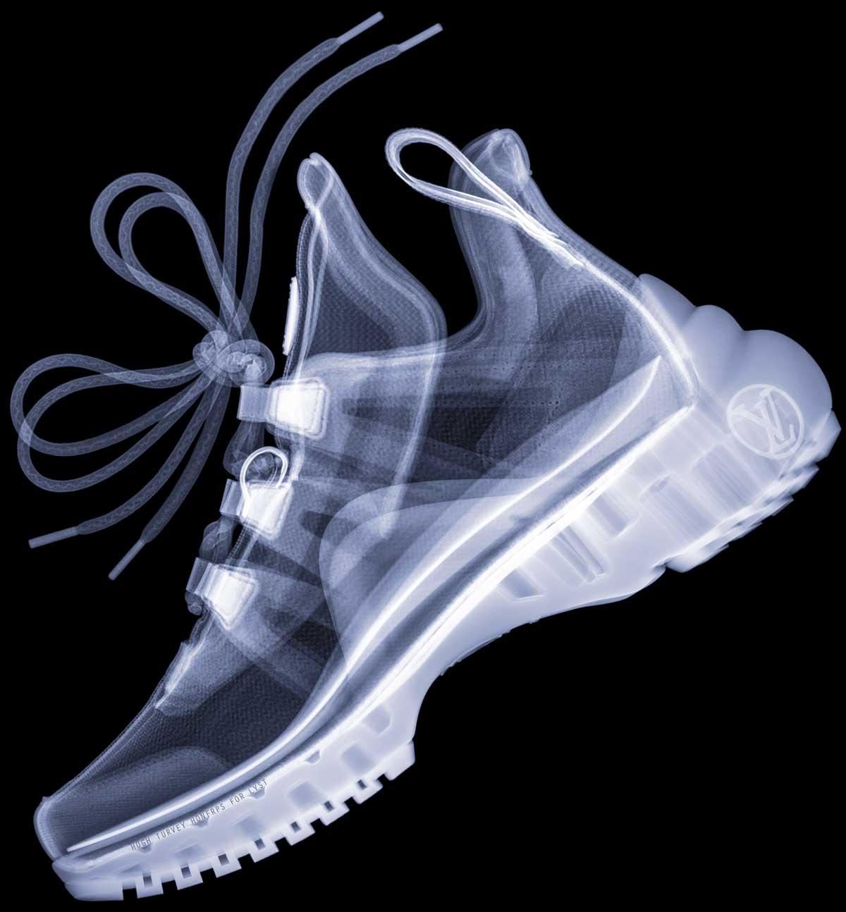 LV Archlight x-ray